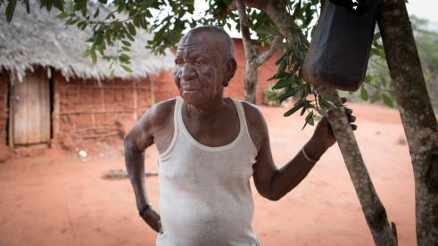 Kahindi, 84, from Kenya became ill in 2007. He is still sick but can't afford to return to the hospital for treatment.