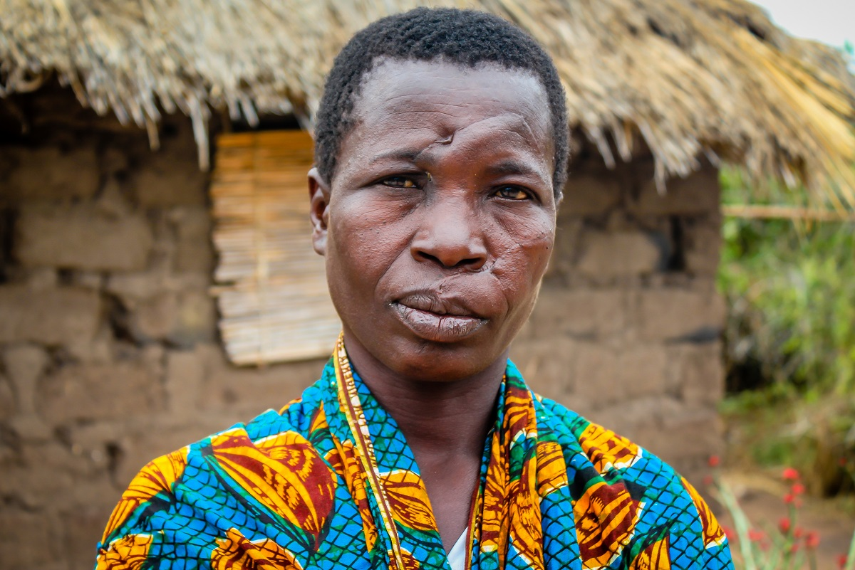 Magene was attacked after being accused of witchcraft in Magu, Tanzania (c) Judith Escribano/Age International